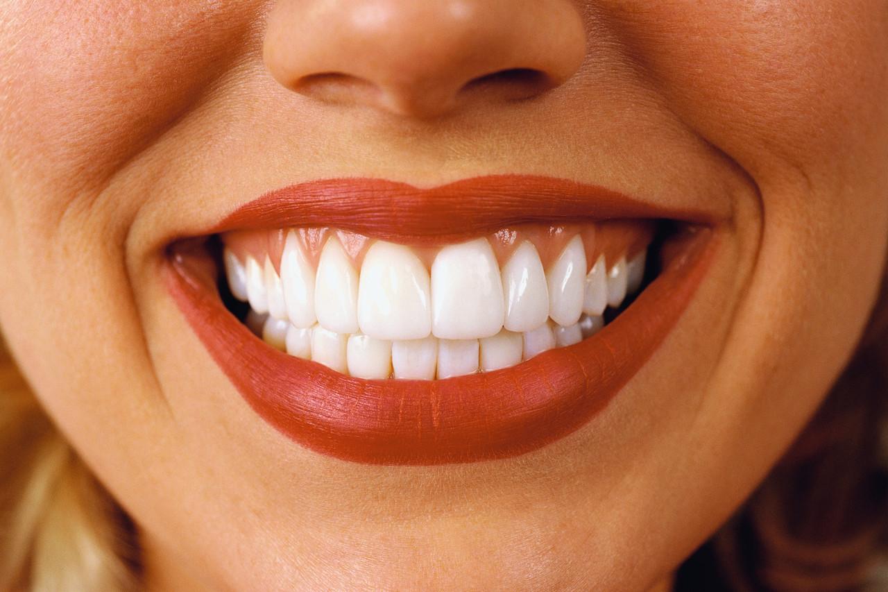 Как сделать голливудскую улыбку из плохих зубов